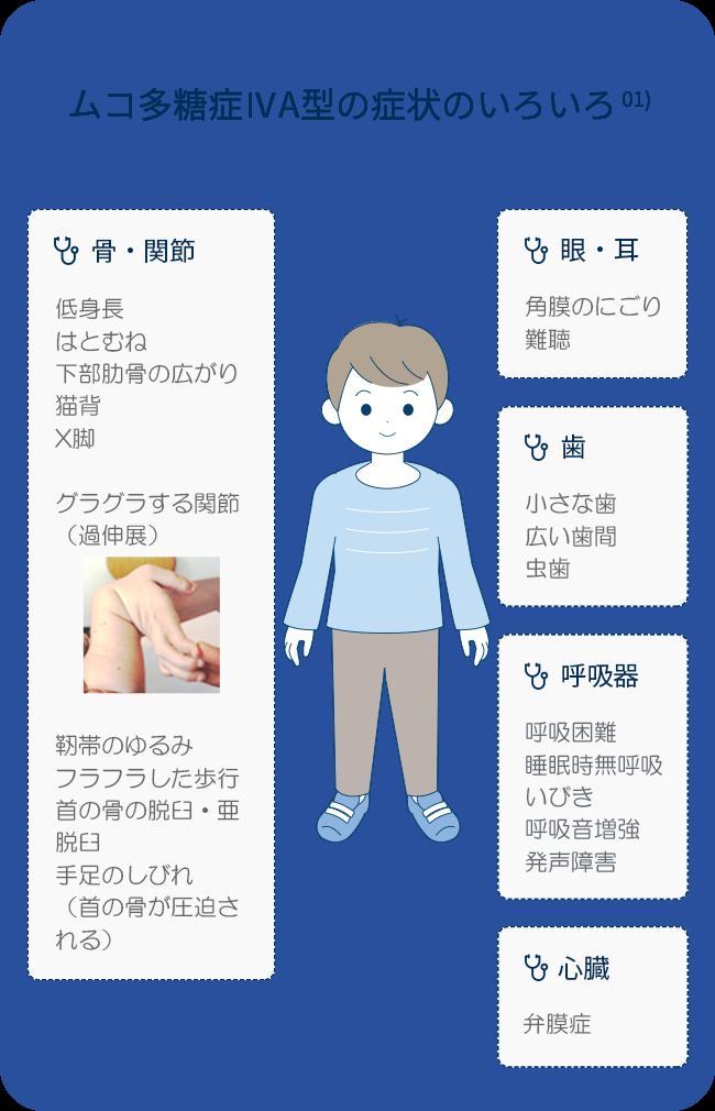 ムコ多糖症ⅣA型の症状のいろいろ
